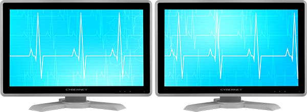 Two Medical Monitors Showing Dual Display Mode
